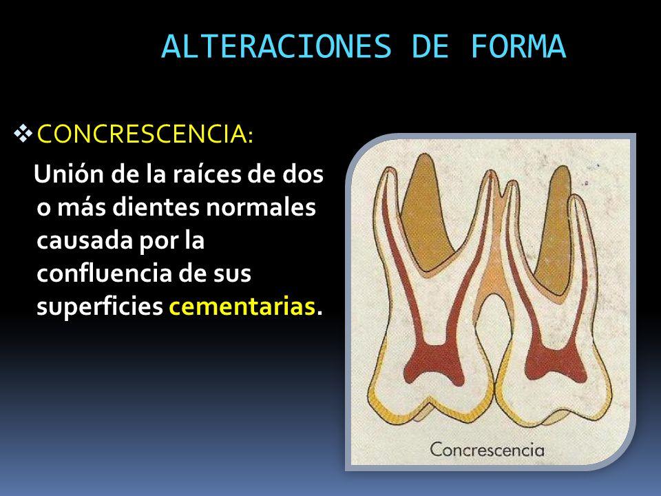 ALTERACIONES DE FORMA CONCRESCENCIA: Unión de la raíces de dos o más dientes normales causada por la confluencia de sus superficies cementarias.