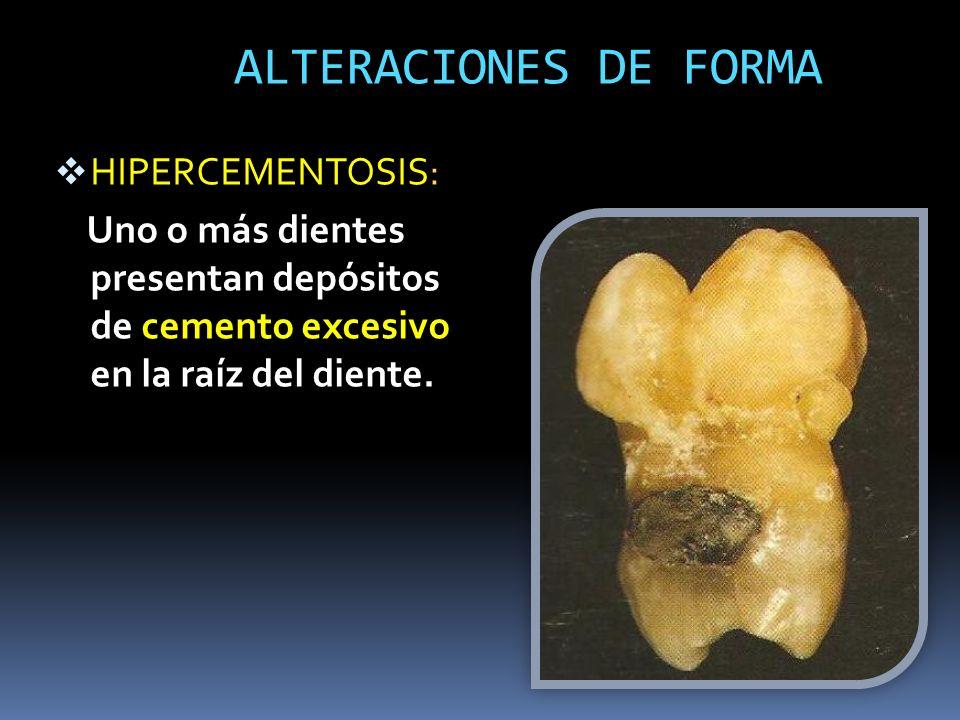 ALTERACIONES DE FORMA HIPERCEMENTOSIS: Uno o más dientes presentan depósitos de cemento excesivo en la raíz del diente.