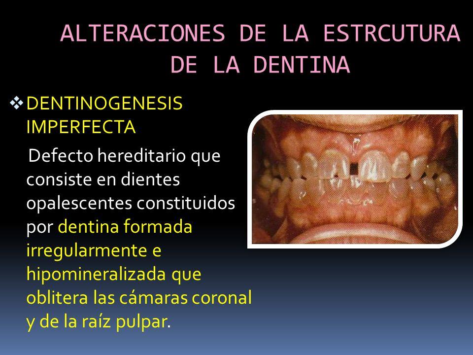 ALTERACIONES DE LA ESTRCUTURA DE LA DENTINA DENTINOGENESIS IMPERFECTA Defecto hereditario que consiste en dientes opalescentes constituidos por dentin