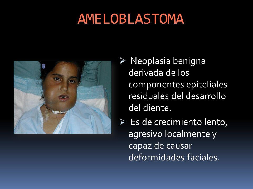 AMELOBLASTOMA Neoplasia benigna derivada de los componentes epiteliales residuales del desarrollo del diente. Es de crecimiento lento, agresivo localm