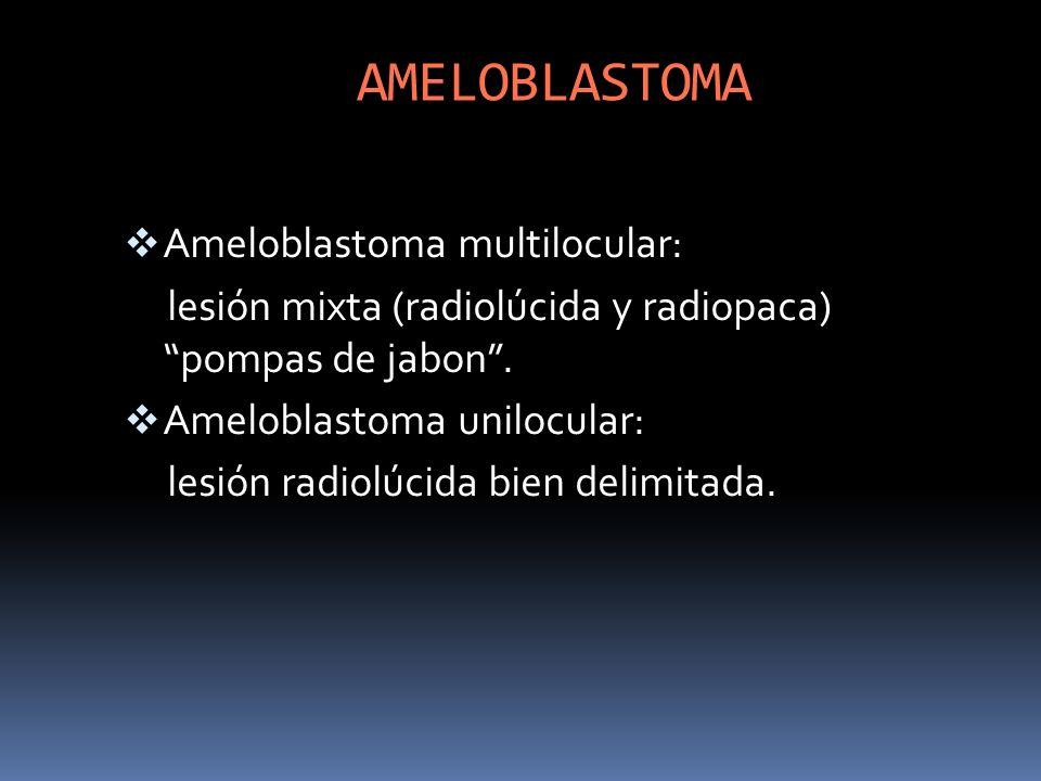 AMELOBLASTOMA Ameloblastoma multilocular: lesión mixta (radiolúcida y radiopaca) pompas de jabon. Ameloblastoma unilocular: lesión radiolúcida bien de