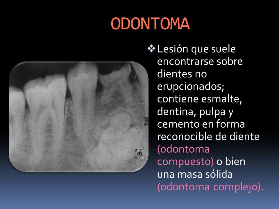 ODONTOMA Lesión que suele encontrarse sobre dientes no erupcionados; contiene esmalte, dentina, pulpa y cemento en forma reconocible de diente (odonto
