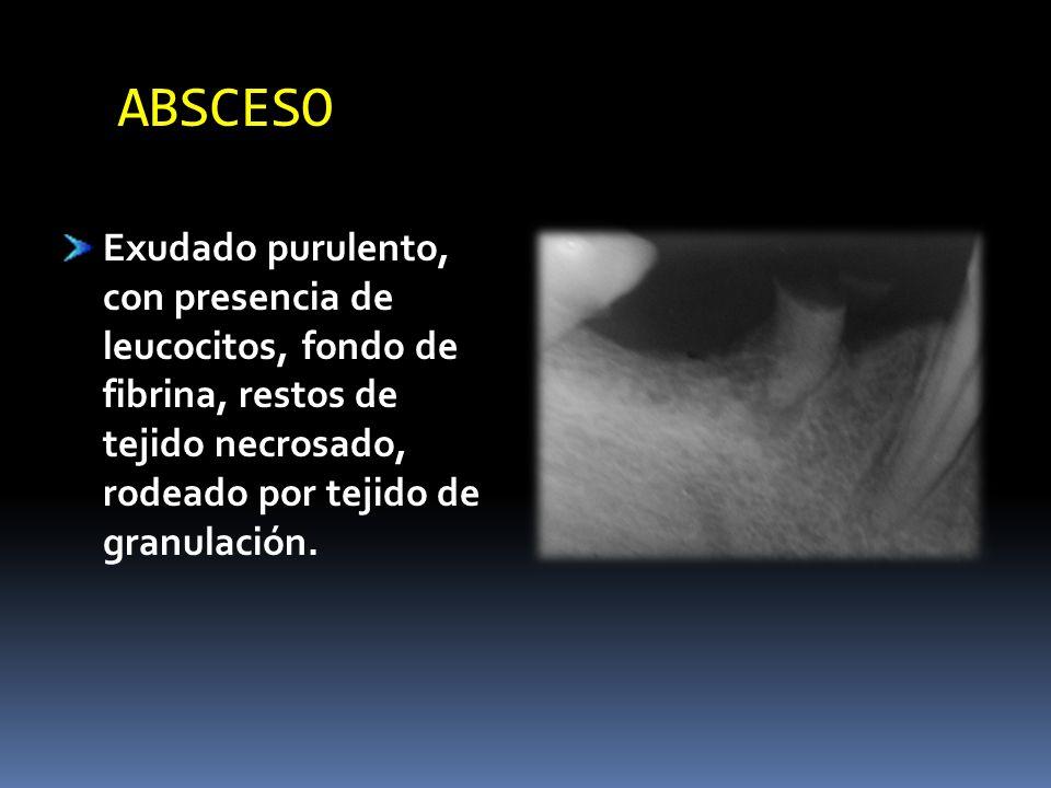 ABSCESO Exudado purulento, con presencia de leucocitos, fondo de fibrina, restos de tejido necrosado, rodeado por tejido de granulación.