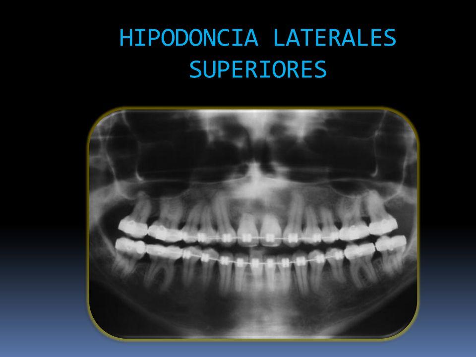 HIPODONCIA LATERALES SUPERIORES