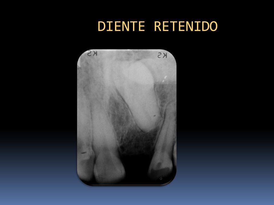 DIENTE RETENIDO