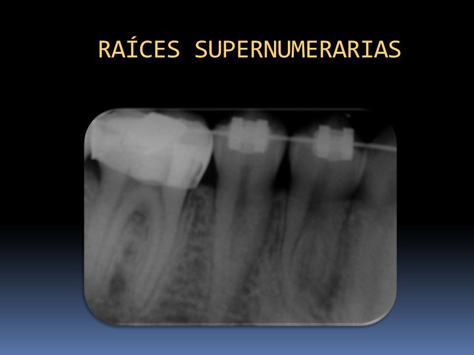 RAÍCES SUPERNUMERARIAS