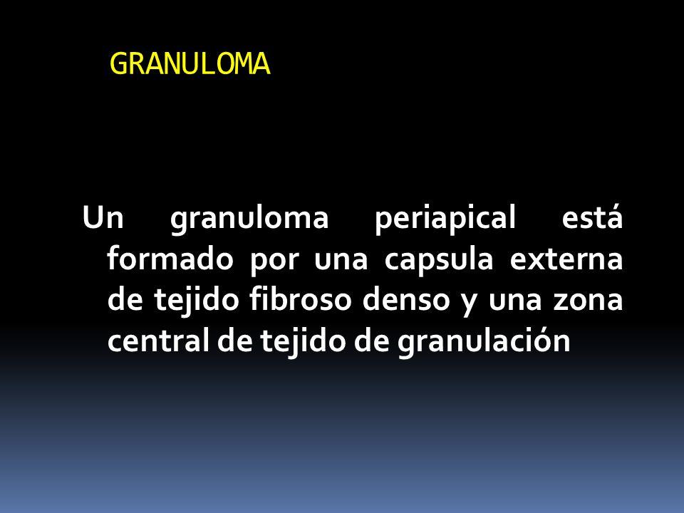 GRANULOMA Un granuloma periapical está formado por una capsula externa de tejido fibroso denso y una zona central de tejido de granulación