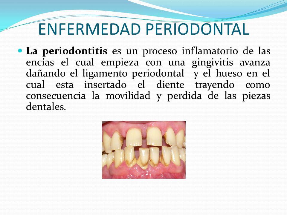 ENFERMEDAD PERIODONTAL La periodontitis es un proceso inflamatorio de las encías el cual empieza con una gingivitis avanza dañando el ligamento period