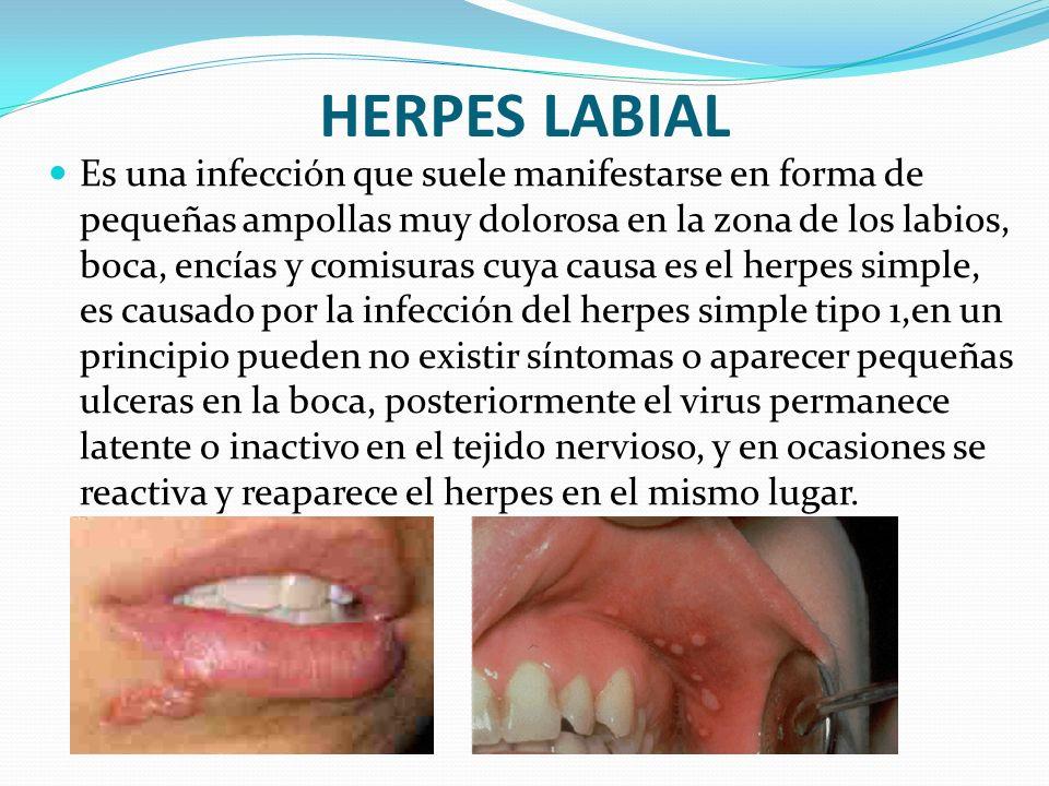 HERPES LABIAL Es una infección que suele manifestarse en forma de pequeñas ampollas muy dolorosa en la zona de los labios, boca, encías y comisuras cu