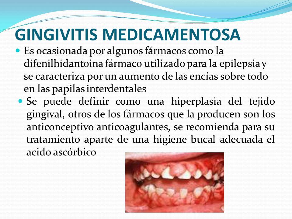 GINGIVITIS MEDICAMENTOSA Es ocasionada por algunos fármacos como la difenilhidantoina fármaco utilizado para la epilepsia y se caracteriza por un aume
