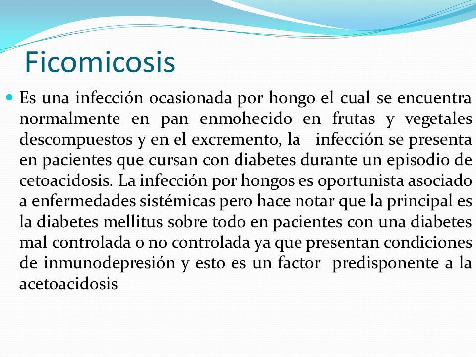 Ficomicosis Es una infección ocasionada por hongo el cual se encuentra normalmente en pan enmohecido en frutas y vegetales descompuestos y en el excre