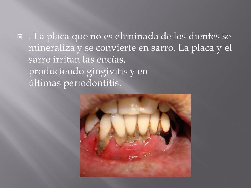. La placa que no es eliminada de los dientes se mineraliza y se convierte en sarro. La placa y el sarro irritan las encías, produciendo gingivitis y