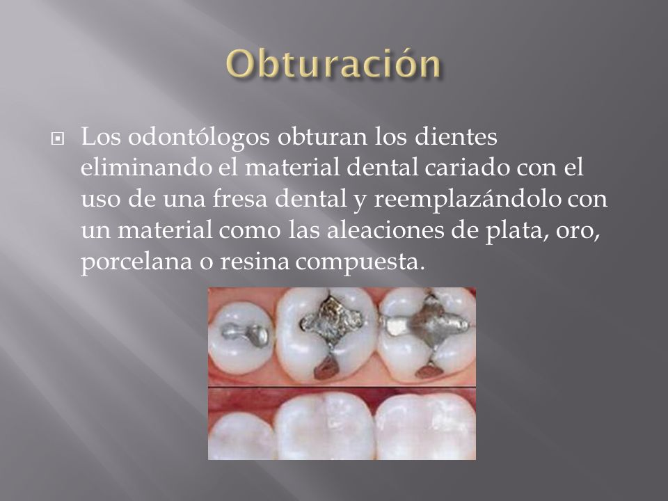 Los odontólogos obturan los dientes eliminando el material dental cariado con el uso de una fresa dental y reemplazándolo con un material como las ale