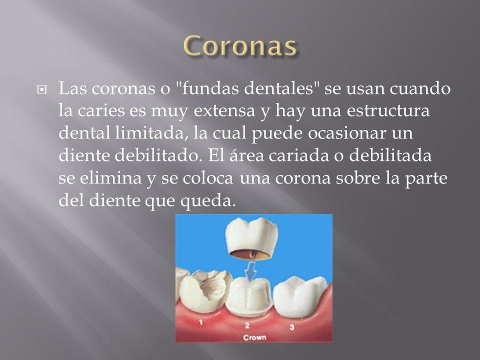 Un tratamiento de conductos se recomienda si el nervio del diente muere como consecuencia de una caries o de una lesión.