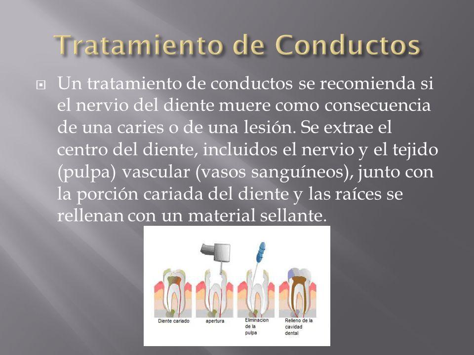 Un tratamiento de conductos se recomienda si el nervio del diente muere como consecuencia de una caries o de una lesión. Se extrae el centro del dient