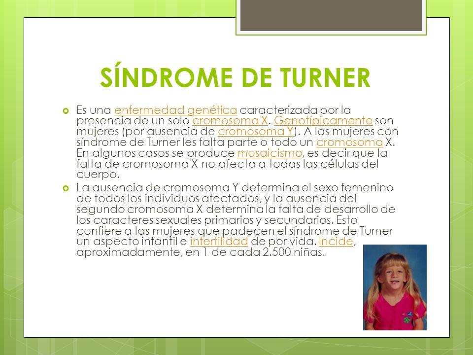 SÍNDROME DE TURNER Es una enfermedad genética caracterizada por la presencia de un solo cromosoma X. Genotípicamente son mujeres (por ausencia de crom