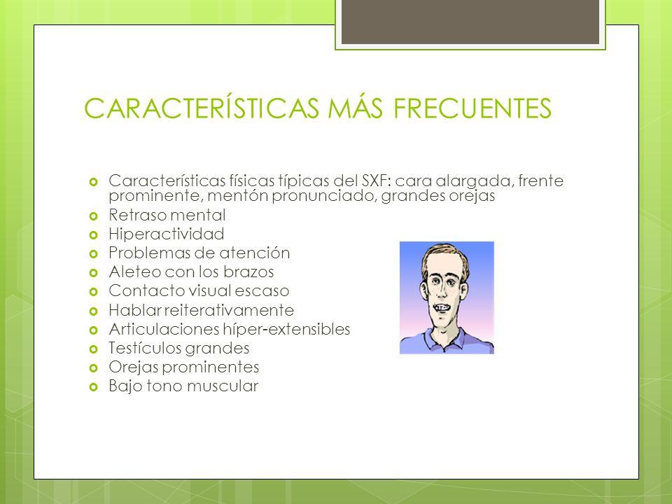 CARACTERÍSTICAS MÁS FRECUENTES Características físicas típicas del SXF: cara alargada, frente prominente, mentón pronunciado, grandes orejas Retraso m