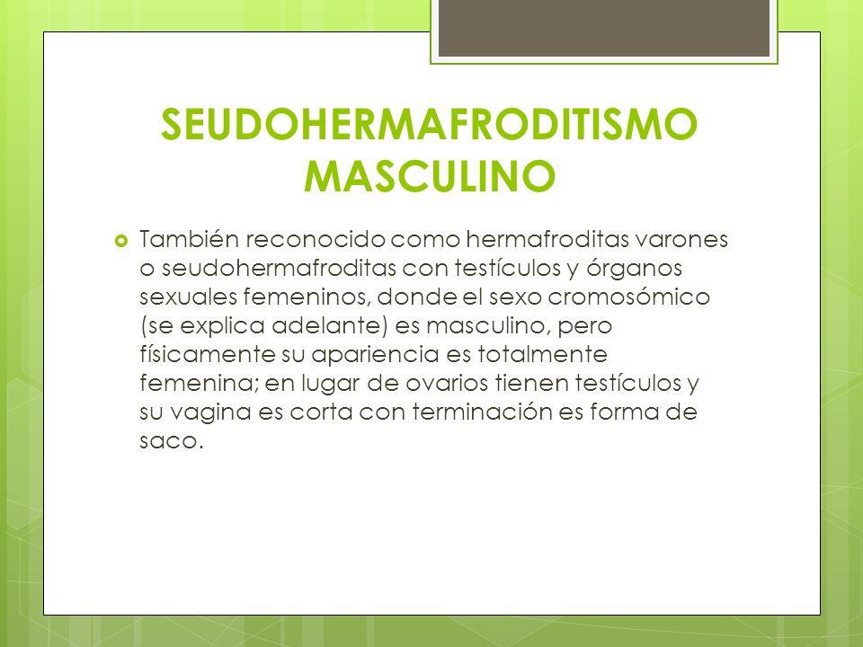 SEUDOHERMAFRODITISMO MASCULINO También reconocido como hermafroditas varones o seudohermafroditas con testículos y órganos sexuales femeninos, donde e