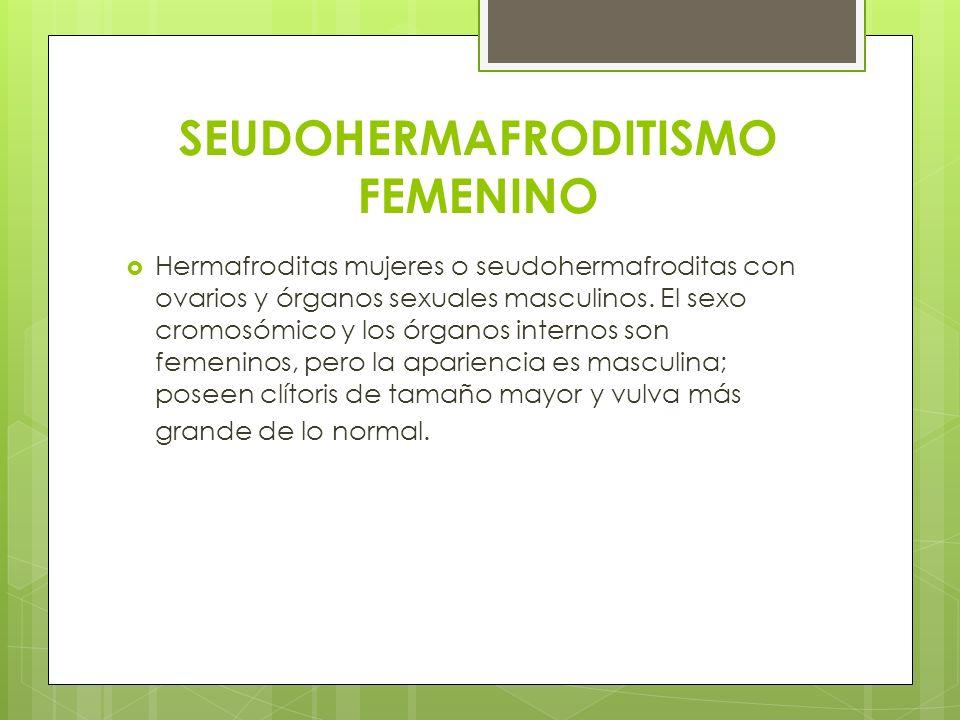 SEUDOHERMAFRODITISMO FEMENINO Hermafroditas mujeres o seudohermafroditas con ovarios y órganos sexuales masculinos. El sexo cromosómico y los órganos