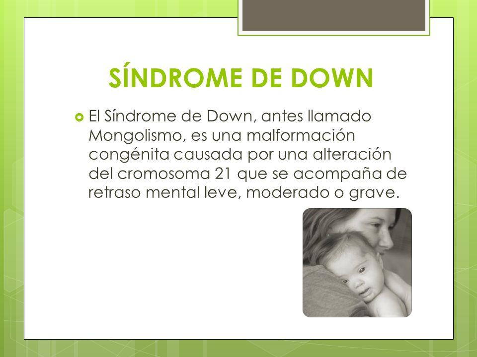 SÍNDROME DE DOWN El Síndrome de Down, antes llamado Mongolismo, es una malformación congénita causada por una alteración del cromosoma 21 que se acomp