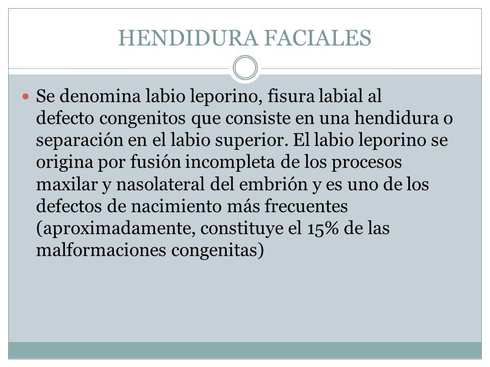 HENDIDURA FACIALES Se denomina labio leporino, fisura labial al defecto congenitos que consiste en una hendidura o separación en el labio superior. El