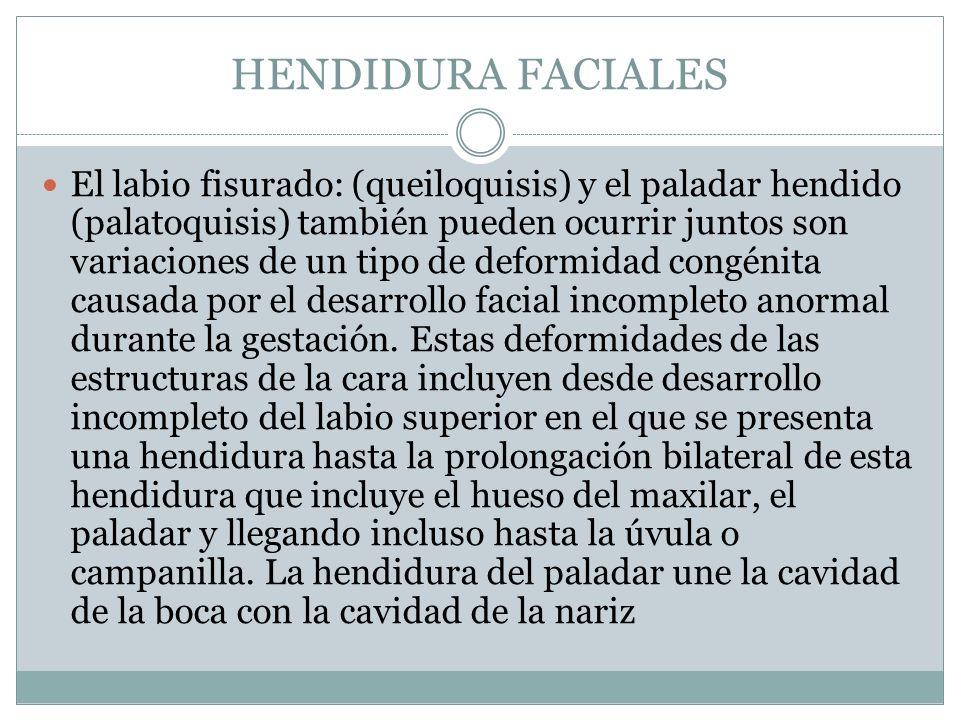 HENDIDURA FACIALES El labio fisurado: (queiloquisis) y el paladar hendido (palatoquisis) también pueden ocurrir juntos son variaciones de un tipo de d
