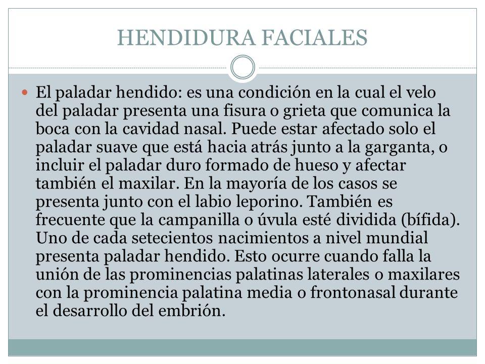 HENDIDURA FACIALES El paladar hendido: es una condición en la cual el velo del paladar presenta una fisura o grieta que comunica la boca con la cavida