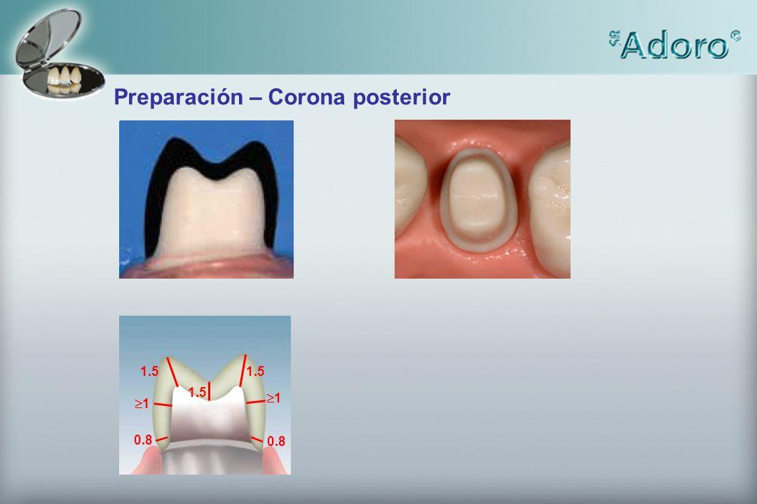 1.5 1 1 0.8 Preparación – Corona posterior