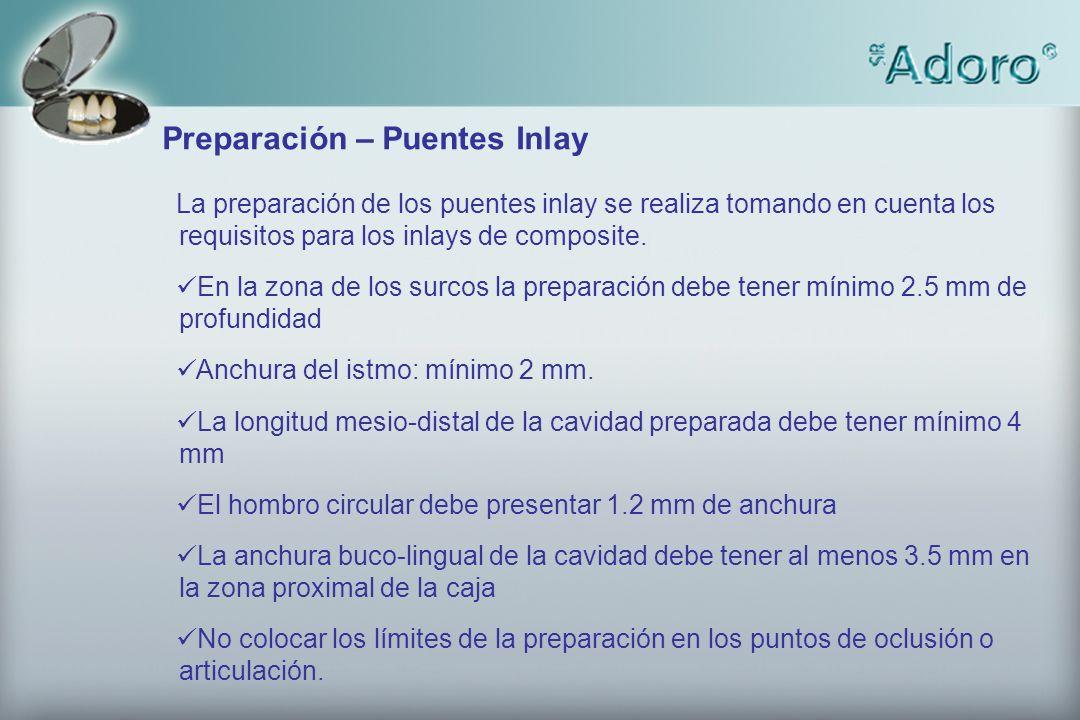 Preparación – Puentes Inlay La preparación de los puentes inlay se realiza tomando en cuenta los requisitos para los inlays de composite. En la zona d