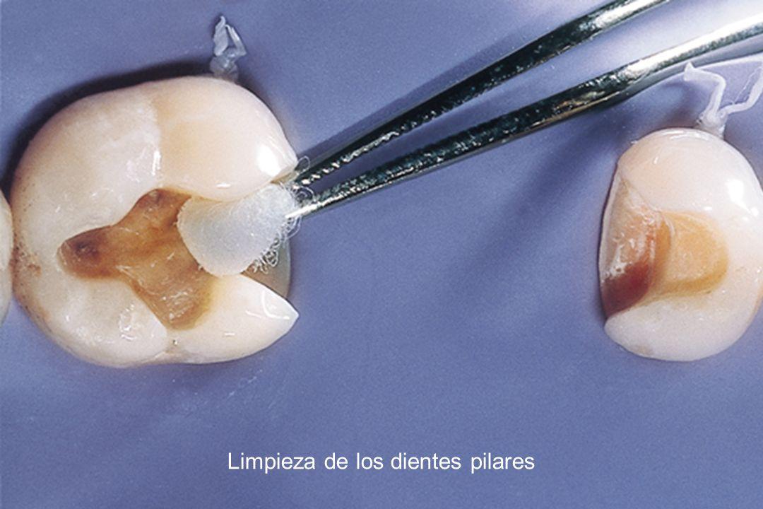 Limpieza de los dientes pilares