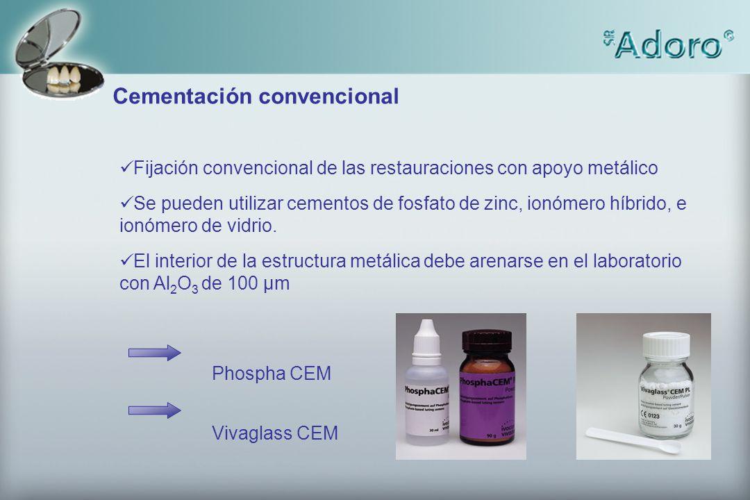 Fijación convencional de las restauraciones con apoyo metálico Se pueden utilizar cementos de fosfato de zinc, ionómero híbrido, e ionómero de vidrio.