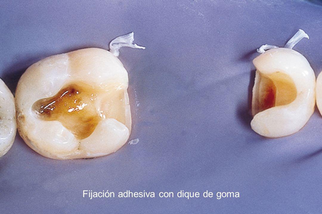 Fijación adhesiva con dique de goma