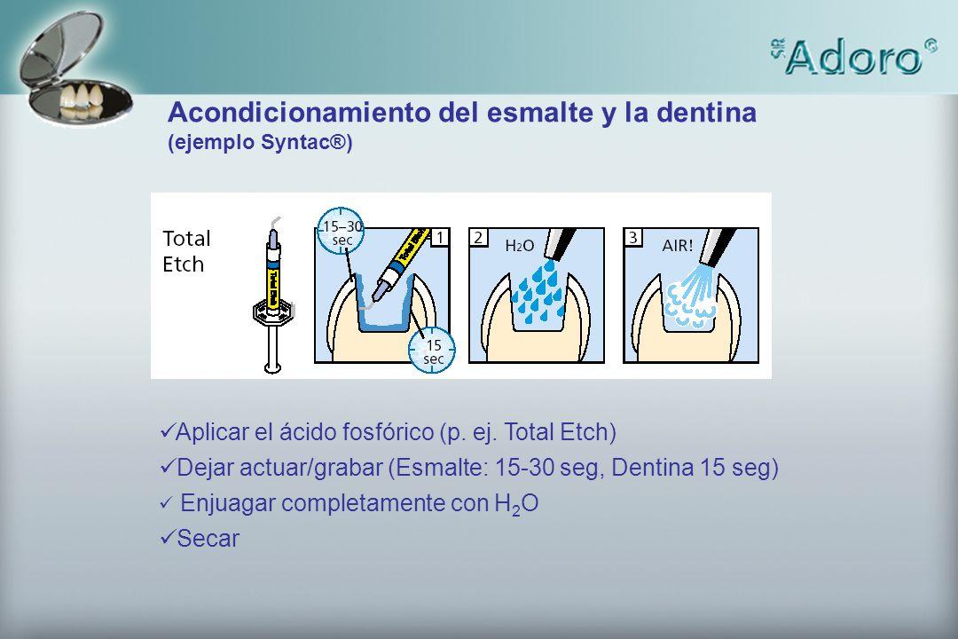 Aplicar el ácido fosfórico (p. ej. Total Etch) Dejar actuar/grabar (Esmalte: 15-30 seg, Dentina 15 seg) Enjuagar completamente con H 2 O Secar Acondic