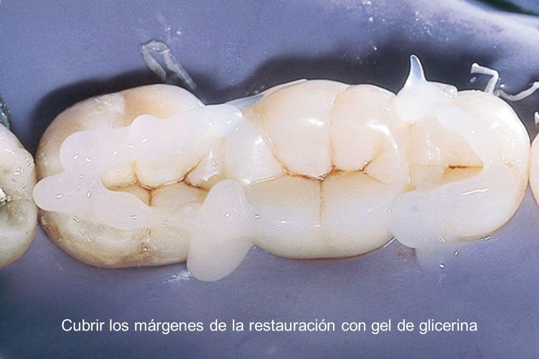 Cubrir los márgenes de la restauración con gel de glicerina