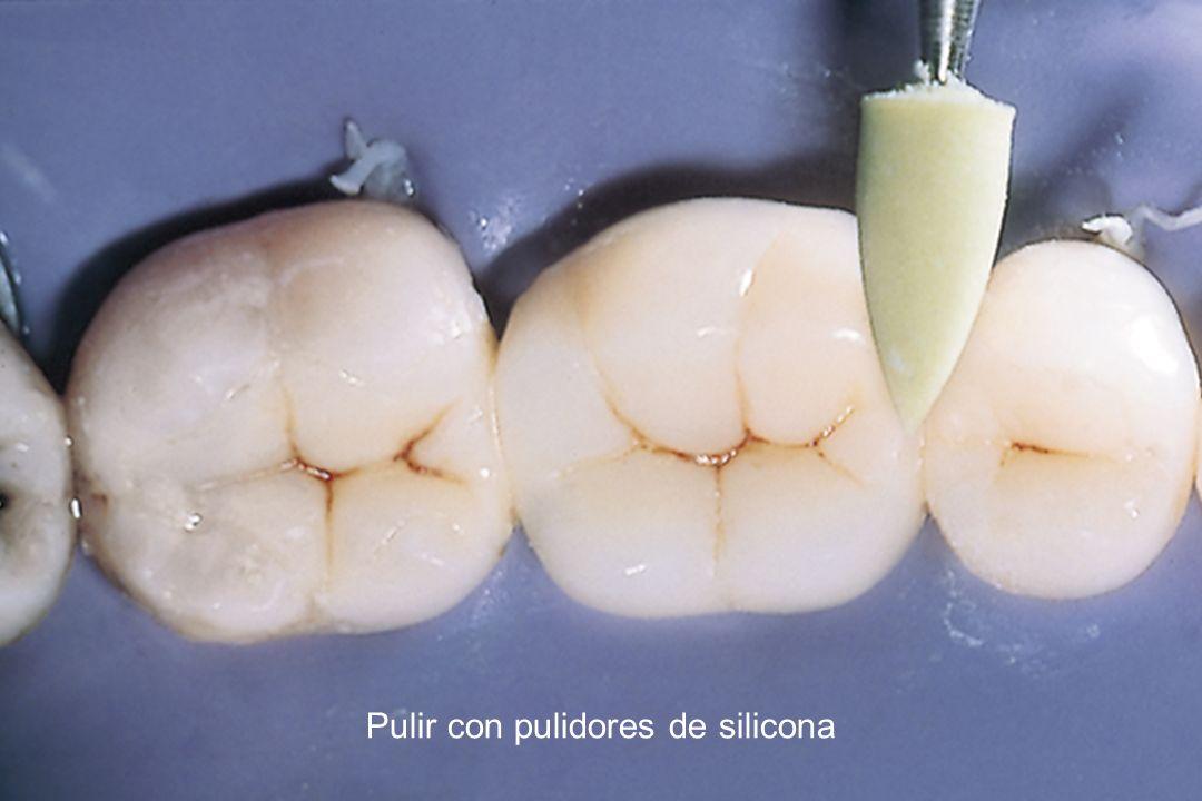 Pulir con pulidores de silicona