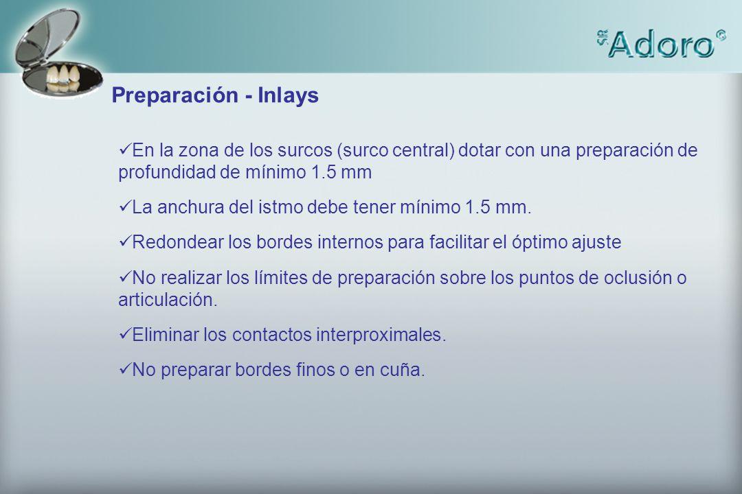 2.5 2 3.5 2.5 3.5 1.2 4 Preparación – Puentes Inlay