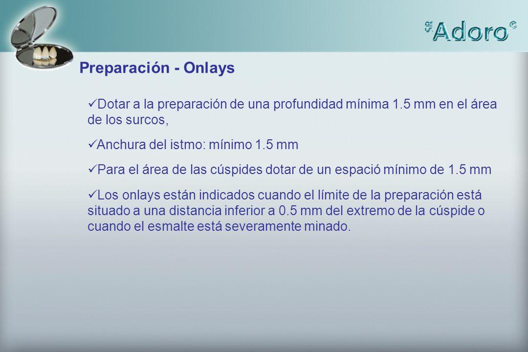 Preparación - Onlays Dotar a la preparación de una profundidad mínima 1.5 mm en el área de los surcos, Anchura del istmo: mínimo 1.5 mm Para el área d