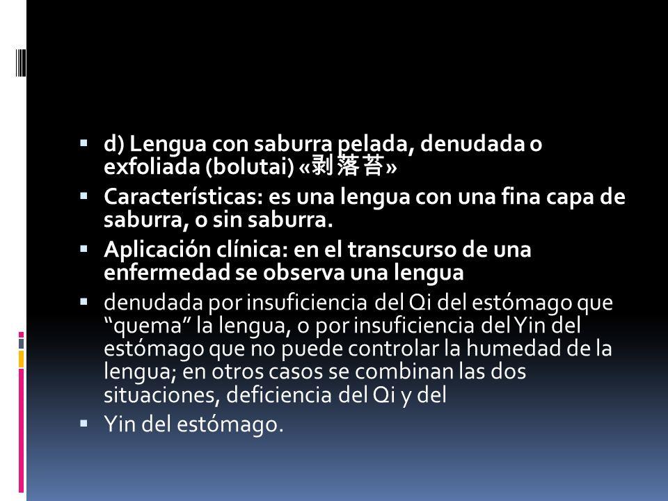 d) Lengua con saburra pelada, denudada o exfoliada (bolutai) « » Características: es una lengua con una fina capa de saburra, o sin saburra.