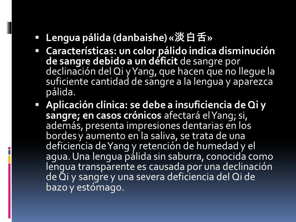 Lengua pálida (danbaishe) « » Características: un color pálido indica disminución de sangre debido a un déficit de sangre por declinación del Qi y Yang, que hacen que no llegue la suficiente cantidad de sangre a la lengua y aparezca pálida.