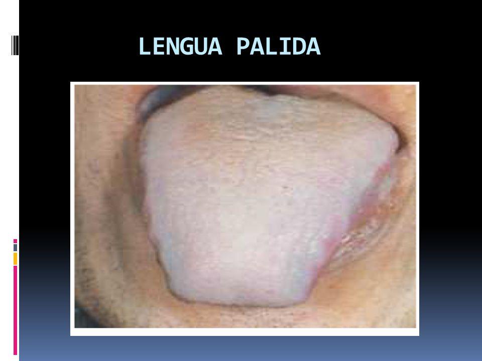 Lengua roja (hongshe) « » Características: en algunas ocasiones es color de la lengua en una persona normal; no obstante puede tener implicaciones patológicas.