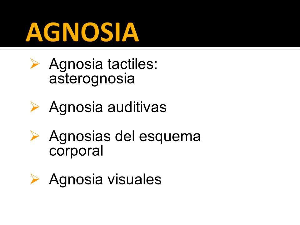 Agnosia tactiles: asterognosia Agnosia auditivas Agnosias del esquema corporal Agnosia visuales