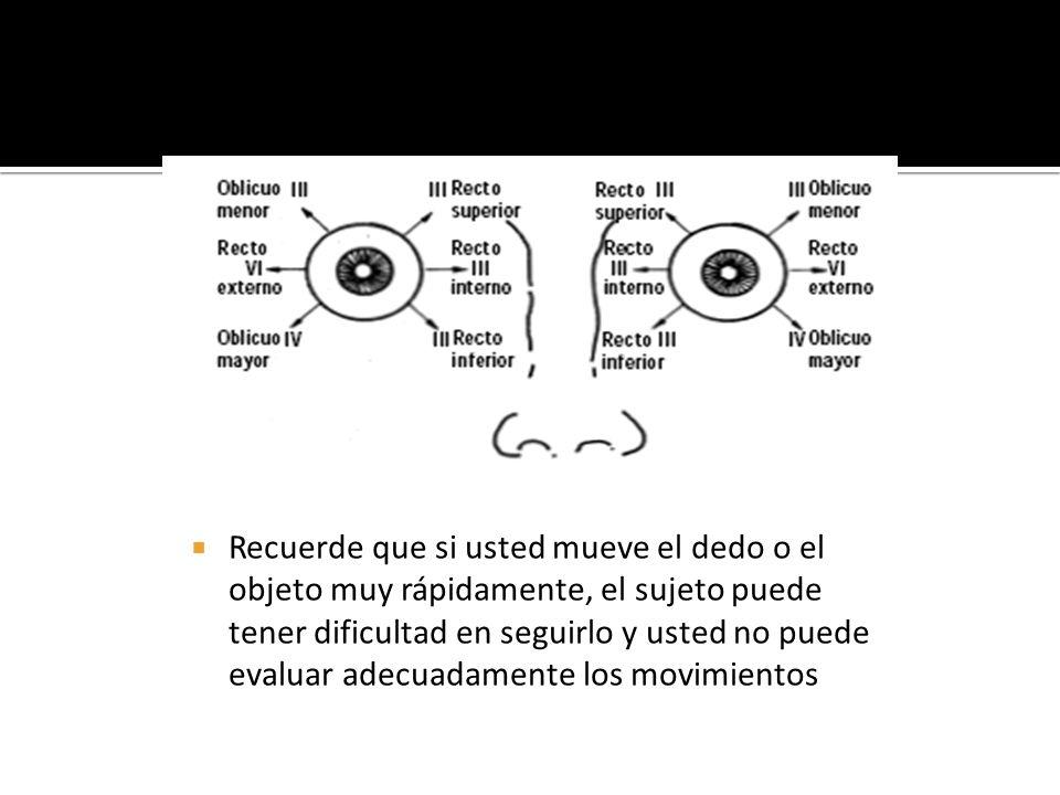 Las pupilas son simétricas, iguales en tamaño.