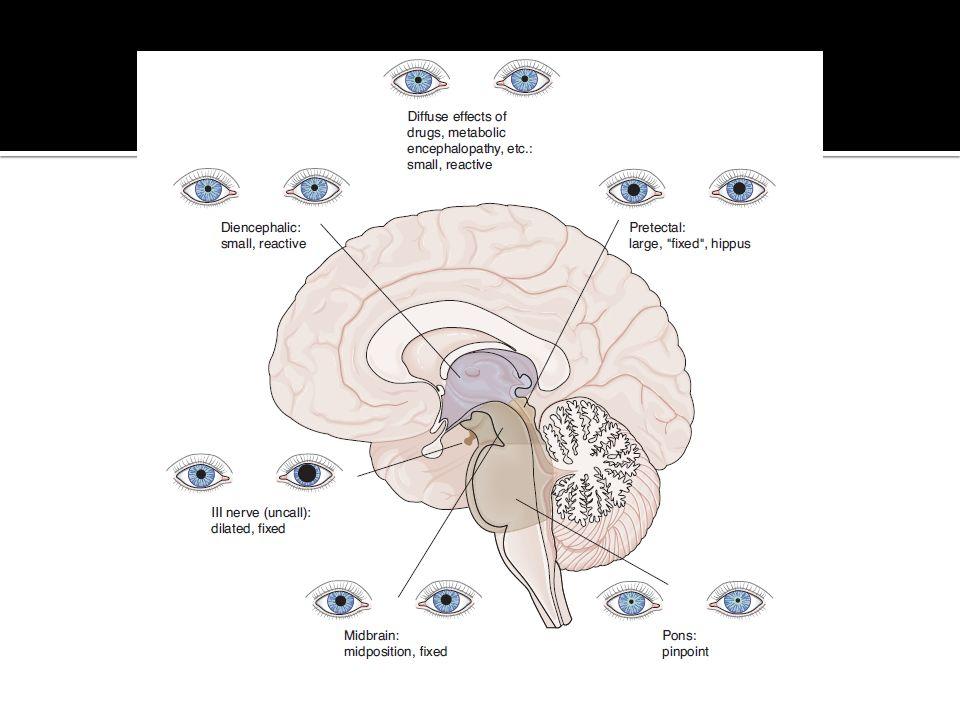 Cuando exploramos el reflejo fotomotor, dirigiendo el rayo de luz sobre un ojo, observamos que normalmente la pupila del otro ojo también se contrae, y que cuando retiramos la luz, dicha pupila se dilata; esto se llama reflejo consensual.