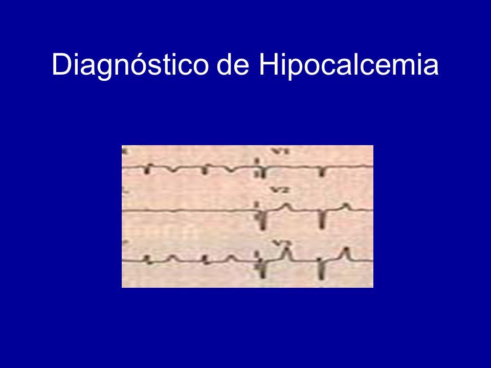 Diagnóstico de Hipocalcemia
