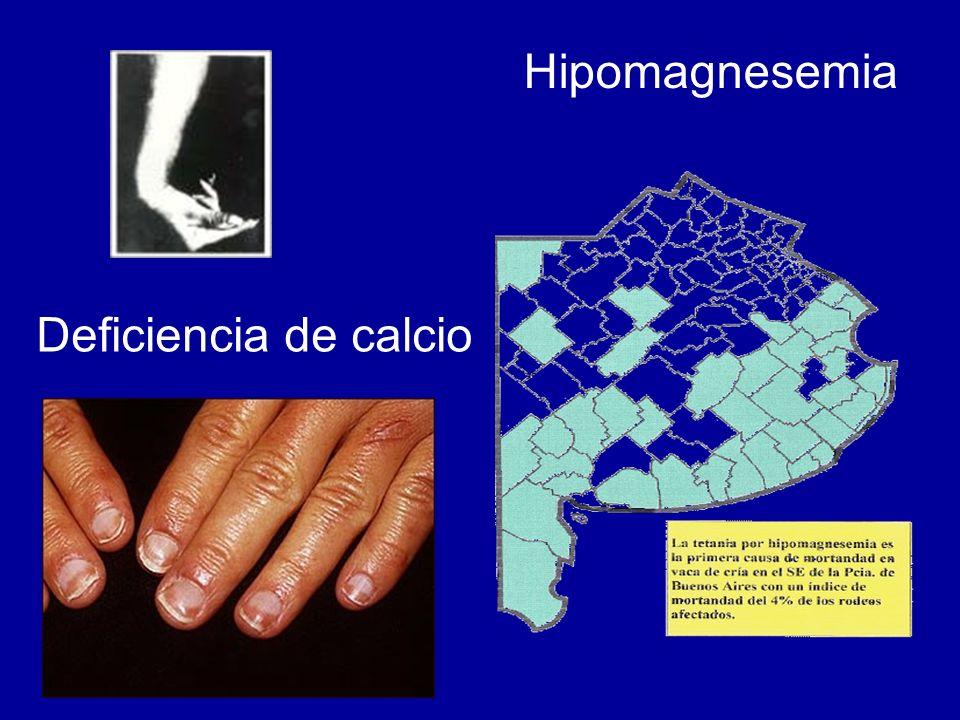 Hipomagnesemia Deficiencia de calcio