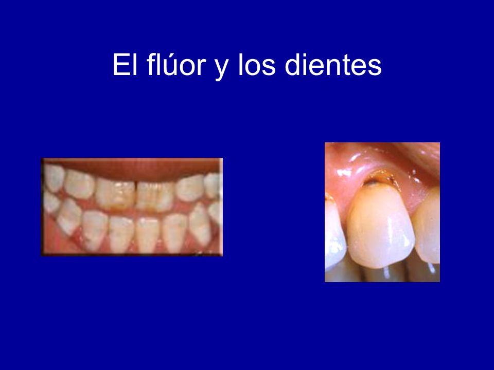El flúor y los dientes