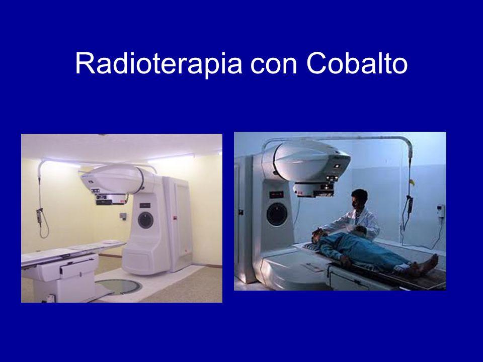 Radioterapia con Cobalto