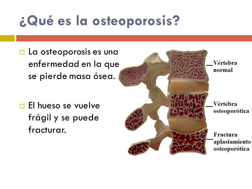 La osteoporosis se presenta con más frecuencia en personas: Del sexo femenino Extremadamente delgadas Con alteraciones hormonales Con dietas pobres en calcio o vitamina D Sedentarias Fumadores Con consumo alto de alcohol Familias con osteoporosis Que consumen medicamentos
