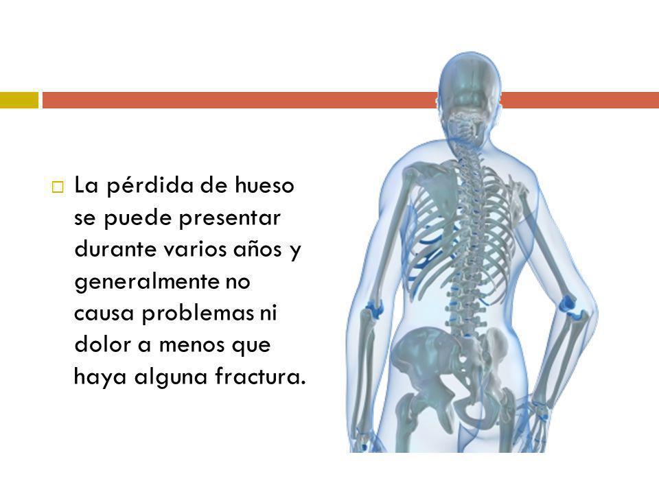 La pérdida de hueso se puede presentar durante varios años y generalmente no causa problemas ni dolor a menos que haya alguna fractura.