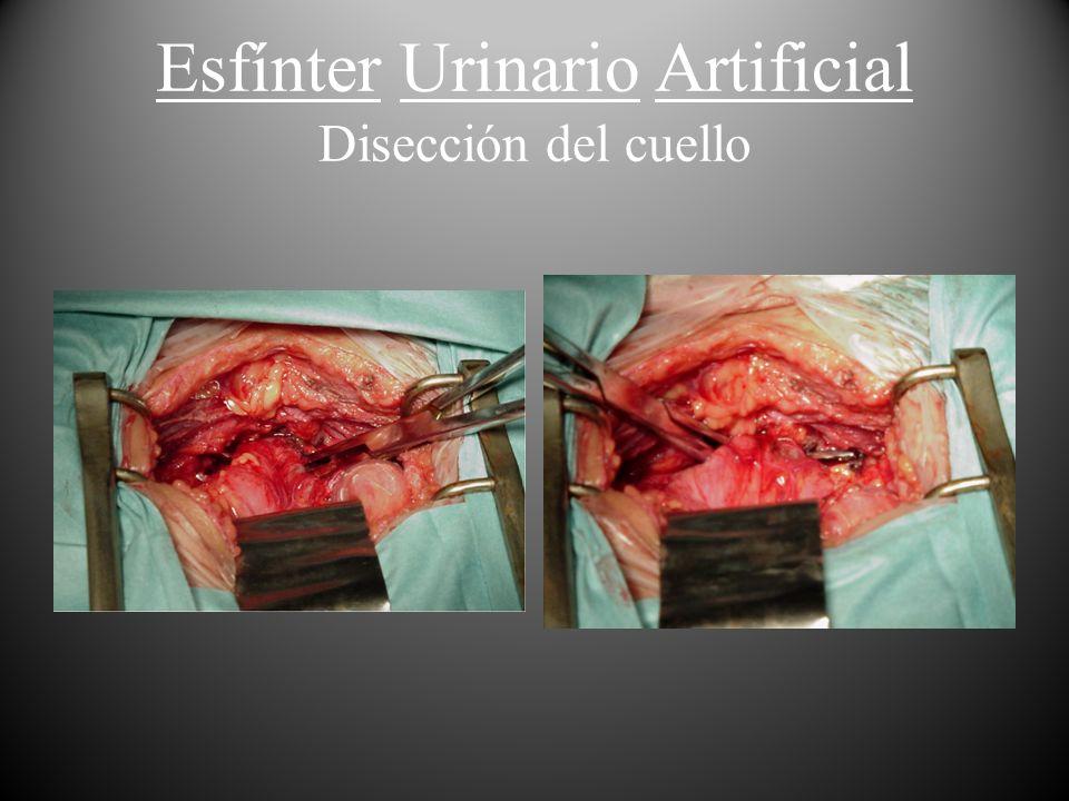 Esfínter Urinario Artificial Disección del cuello